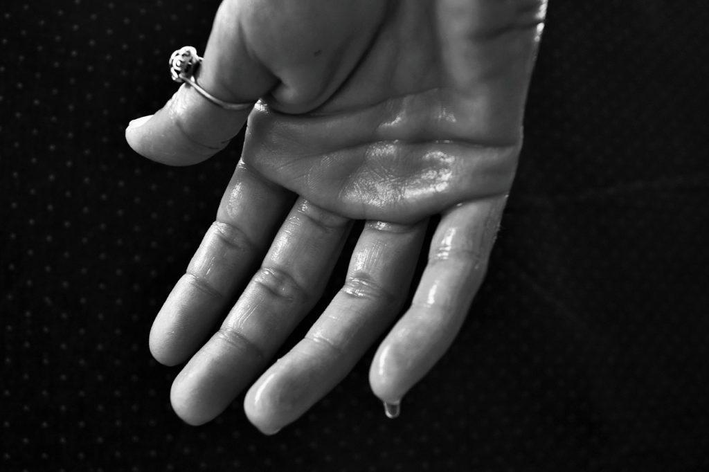 Hyperhidrose Hand