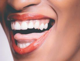 Weiße Zähne durch Phone Bleaching